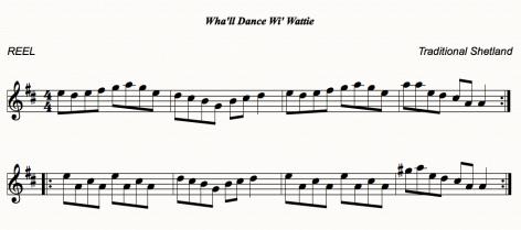 Wha'll Dance wi Wattie
